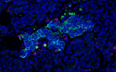 Insulin secreting cells under attack from from immune cells