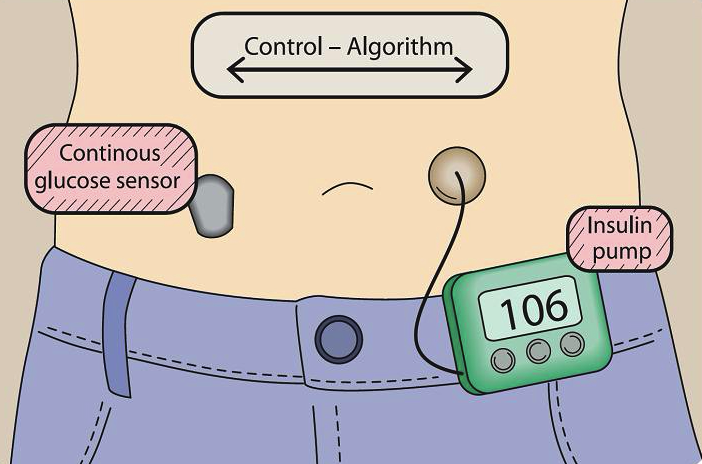 Artificial Pancreas Shows Positive Results In Adults The